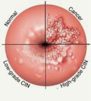 hpv virus symptomen vrouw)