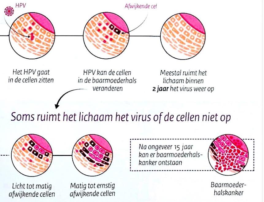 l anemie inflammatoire verucile genitale la femei ce să facă